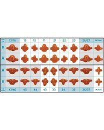 Al Dente - Prefabricated Wax Single Parts - Size A & B - (30 pcs)